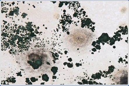What Is Mold