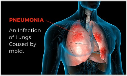 Infected With Pneumonia